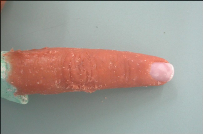 Figure 4: Artificial nail placed on retreived unfinished prosthesis
