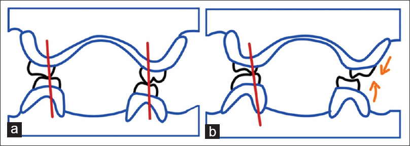 Figure 1: (a) Pound's concept: In centric occlusion. (b) Pound's concept: Right lateral position