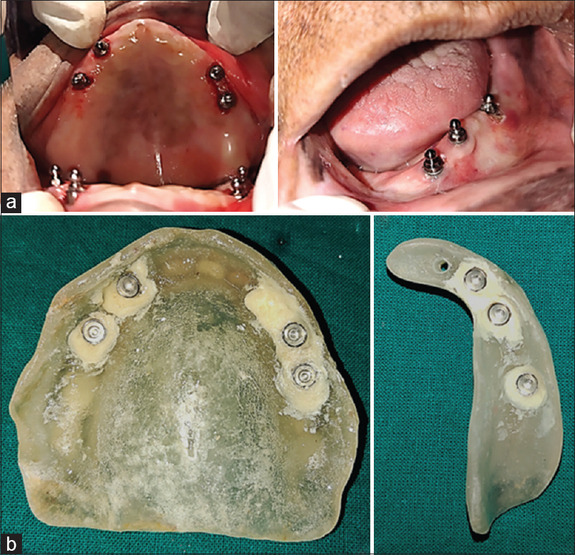 Figure 12: (a) Ball abutment placement, (b) pick up of metal housing in denture